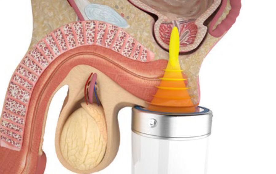Лазерное лечение простатита