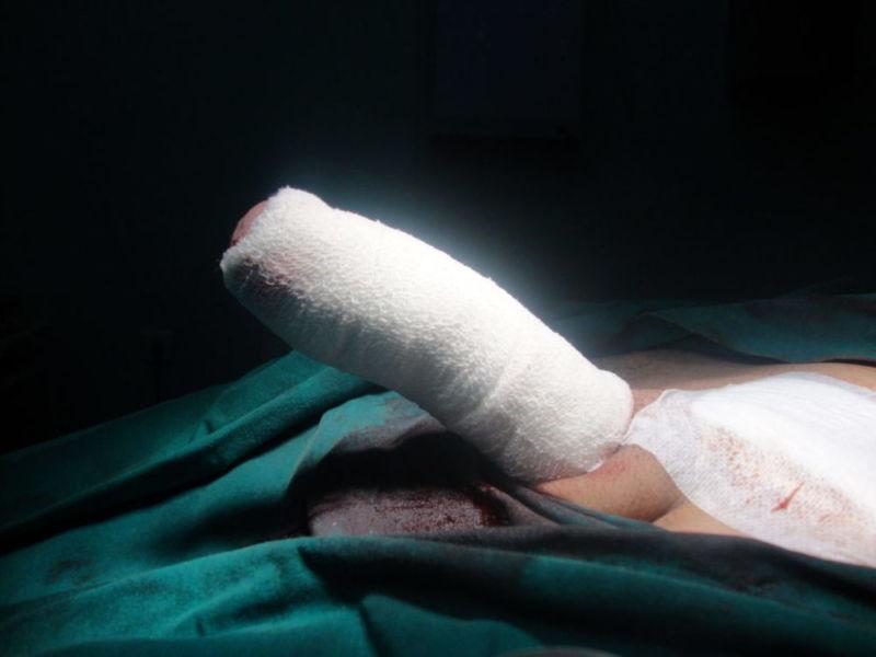 После операции по увеличению члена