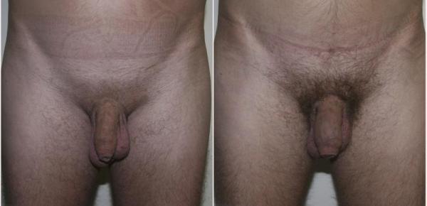 Липофилнг. Фото до и после