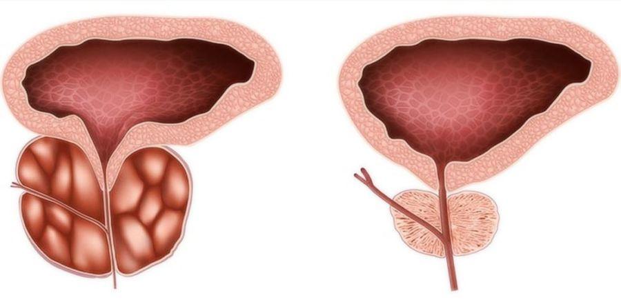 Воспаленная и нормальная простата