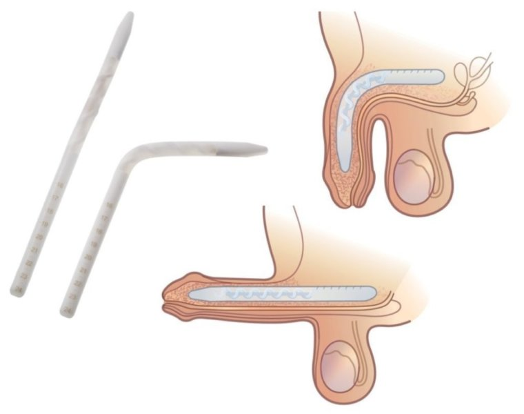 эндопротез пениса однокомпонентный