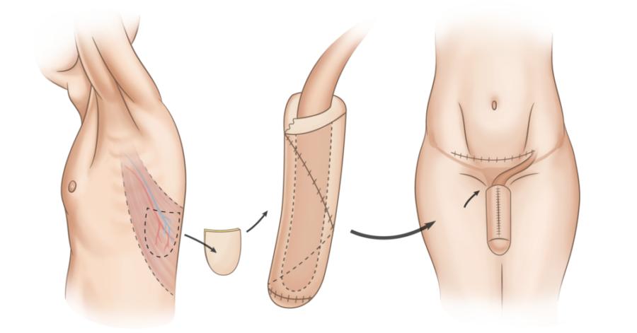 Торакодорзальный лоскут