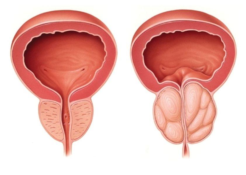 Обычная и увеличенная простата