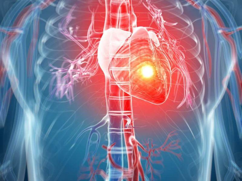Проблемы с работой сердца